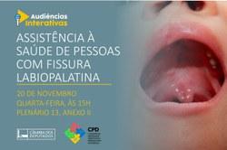 Audiência pública debaterá a Assistência à Saúde de Pessoas com Fissura Labiopalatina